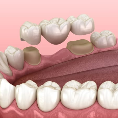 Dental Bridges | Scotia Dental | Halifax Dentist